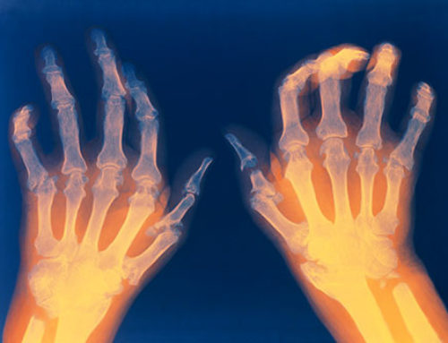 Arthritis Treatment Options